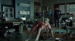 Hannibal_Empalamiento quirúrgico
