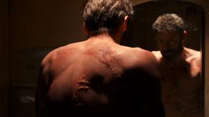 logan-scars